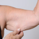 How To Reduce Arm Fat – Your Ultimate Guide